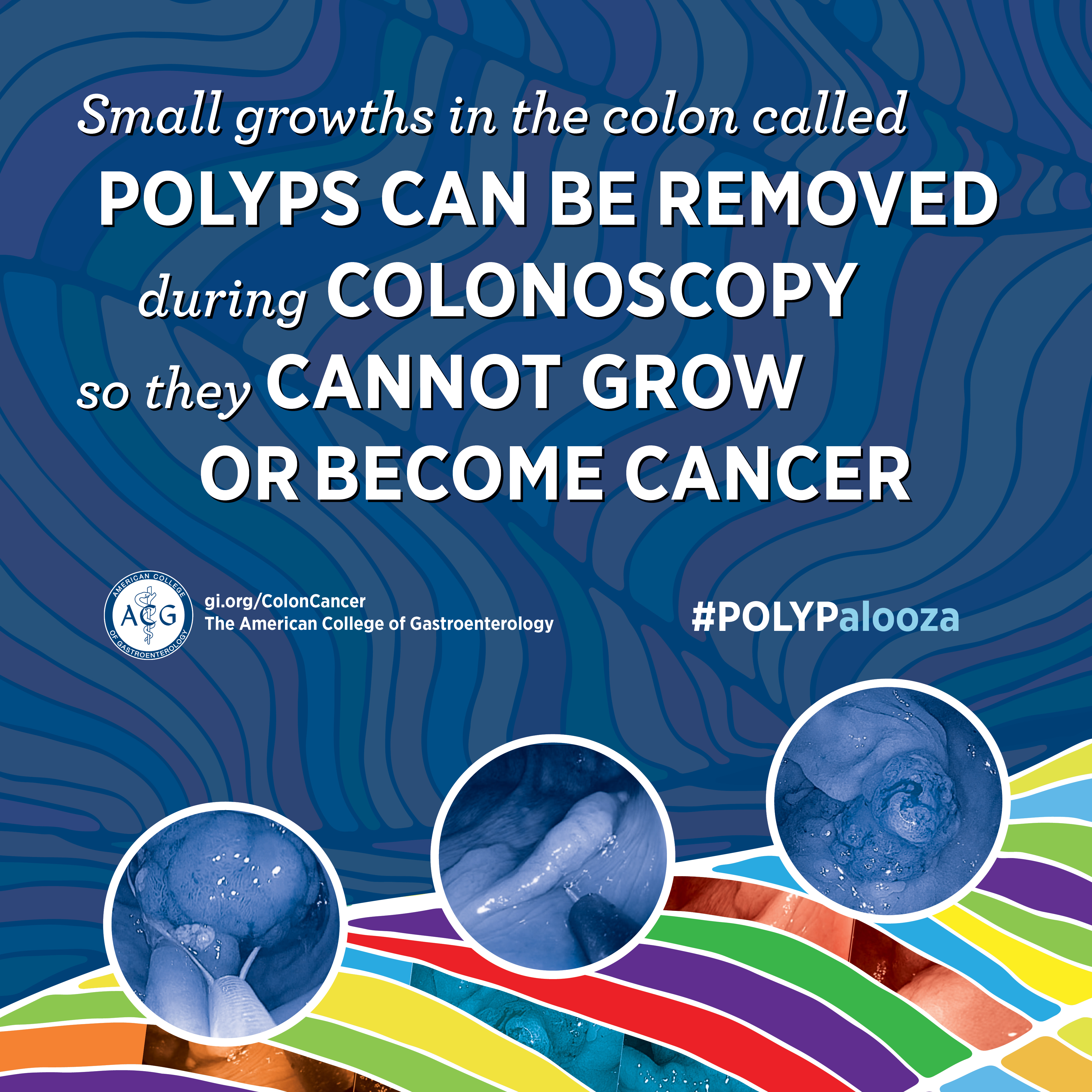 Colorectal Cancer Awareness Education Resources American College Of Gastroenterology